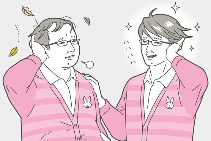 双子実験から薄毛の未来が見えてきた!!