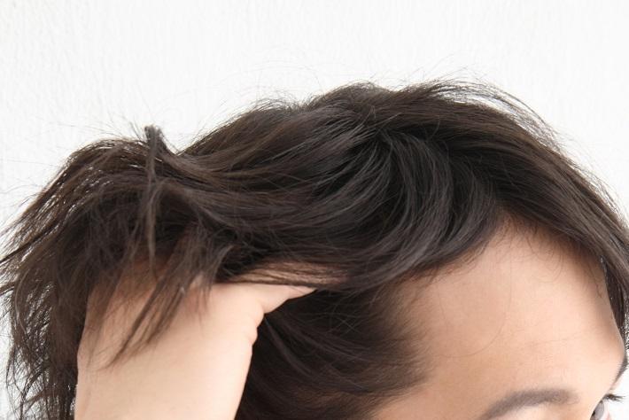"""実は抜け毛が多いこの季節。秋同様に注意したい""""脱薄毛""""4つの新常識"""