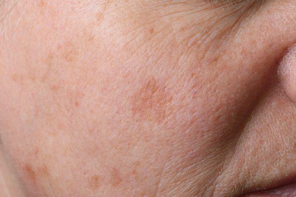 紫外線と光老化の関係