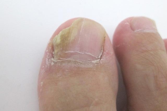 爪水虫の治療法とは? 足の爪が濁っていたら要注意!