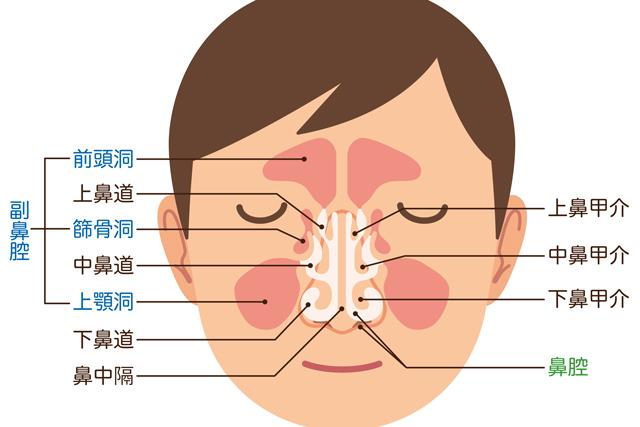 鼻の横の「副鼻腔」に膿が溜まる