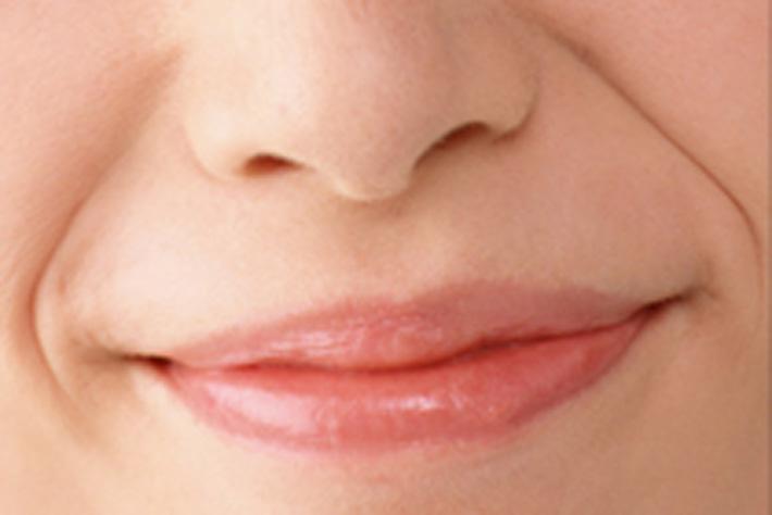 ほうれい線の対策と6つの治療法