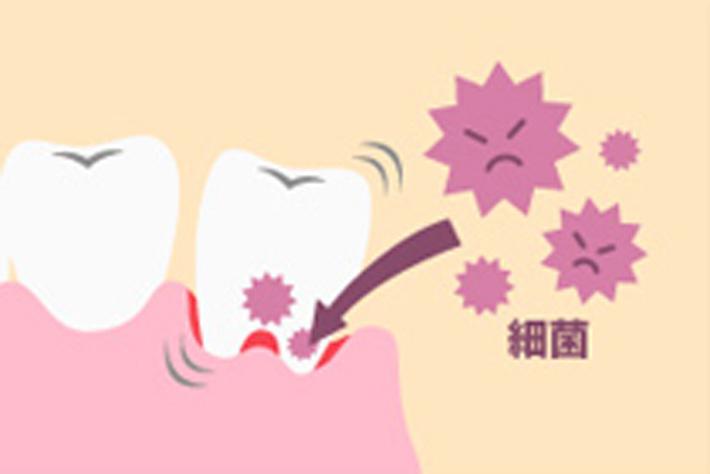 歯磨きで血が出た! 歯ぐきの出血の原因と対策