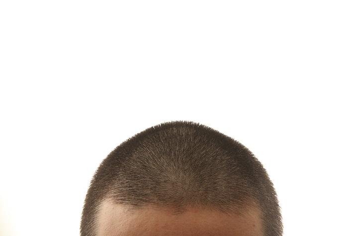 【若い世代の薄毛トラブル1】 10代で薄毛!? 若くても薄毛になることはあるの?