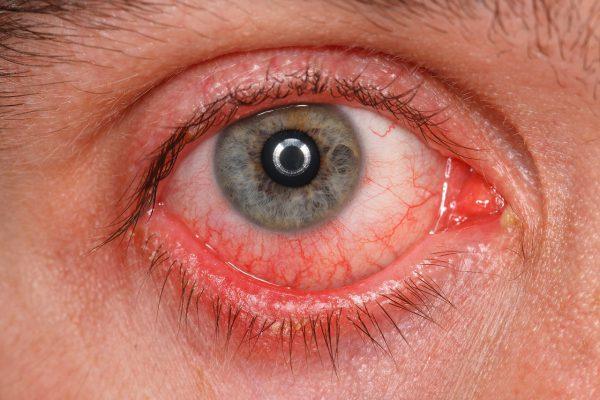 充血の症状