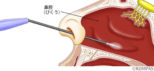 鼻づまりの手術の図解